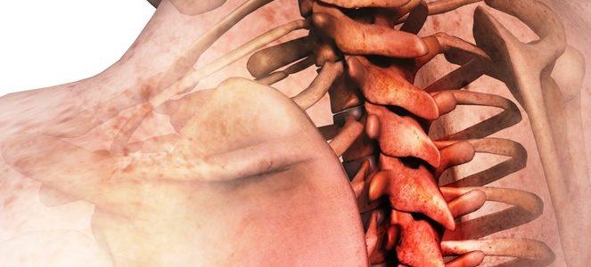 Мифы и реальность мануальной терапии при лечении грыж позвоночника